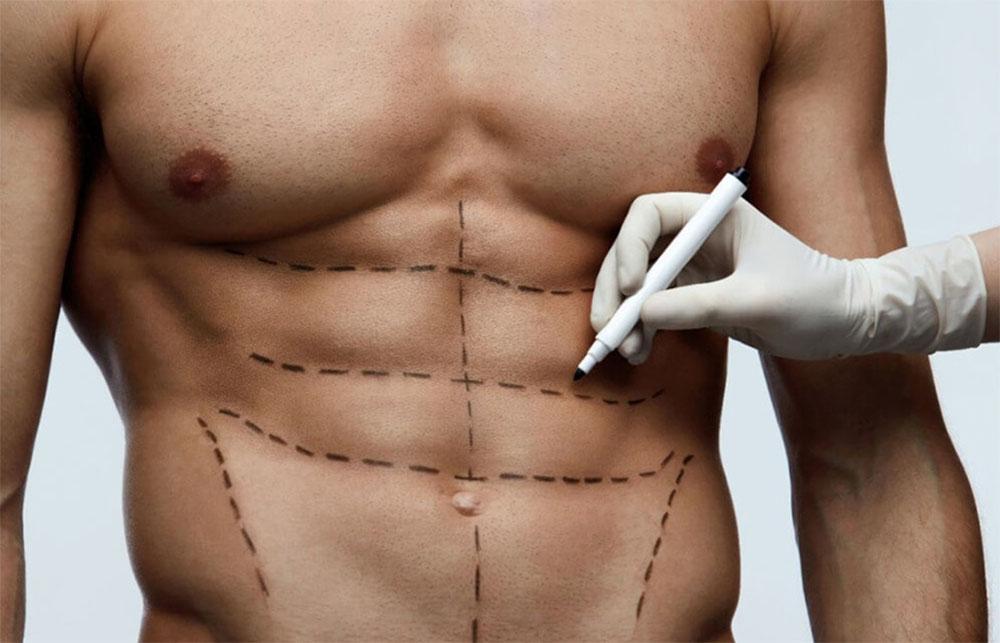 Естетска хирургија за мажи