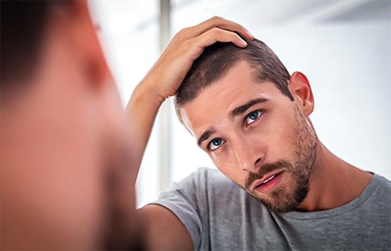 опаѓањето на косата