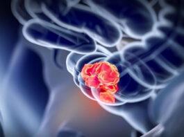 Ракот на дебелото црево